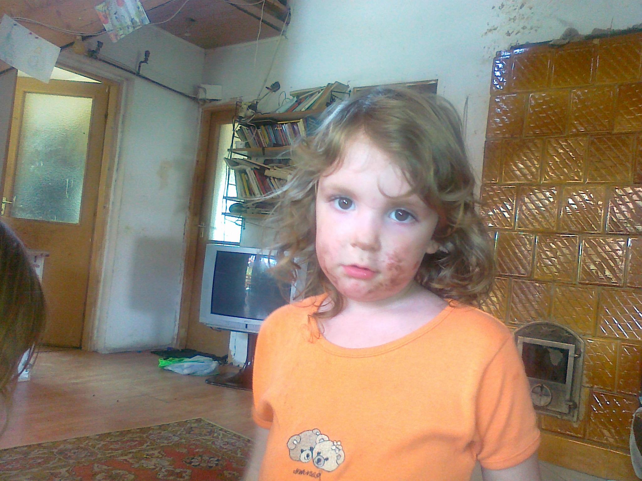 Székrekedés csecsemő és kisgyermekkorban | kisberikonyvtar.hu