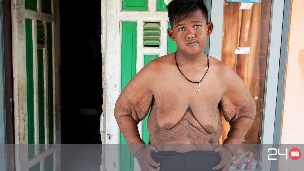 Bréking: ha kevesebbet eszik, lefogy!