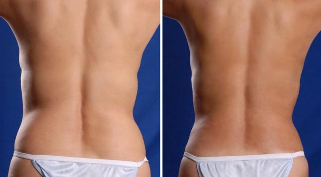 hogyan lehet elveszíteni a zsírt a csípőjéből