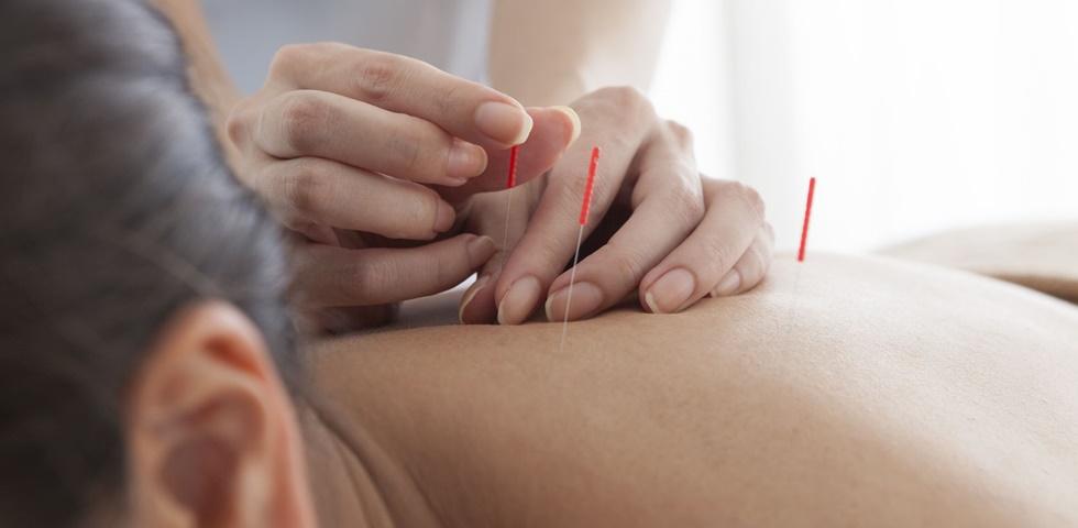 akupunktúra fogyás otthon