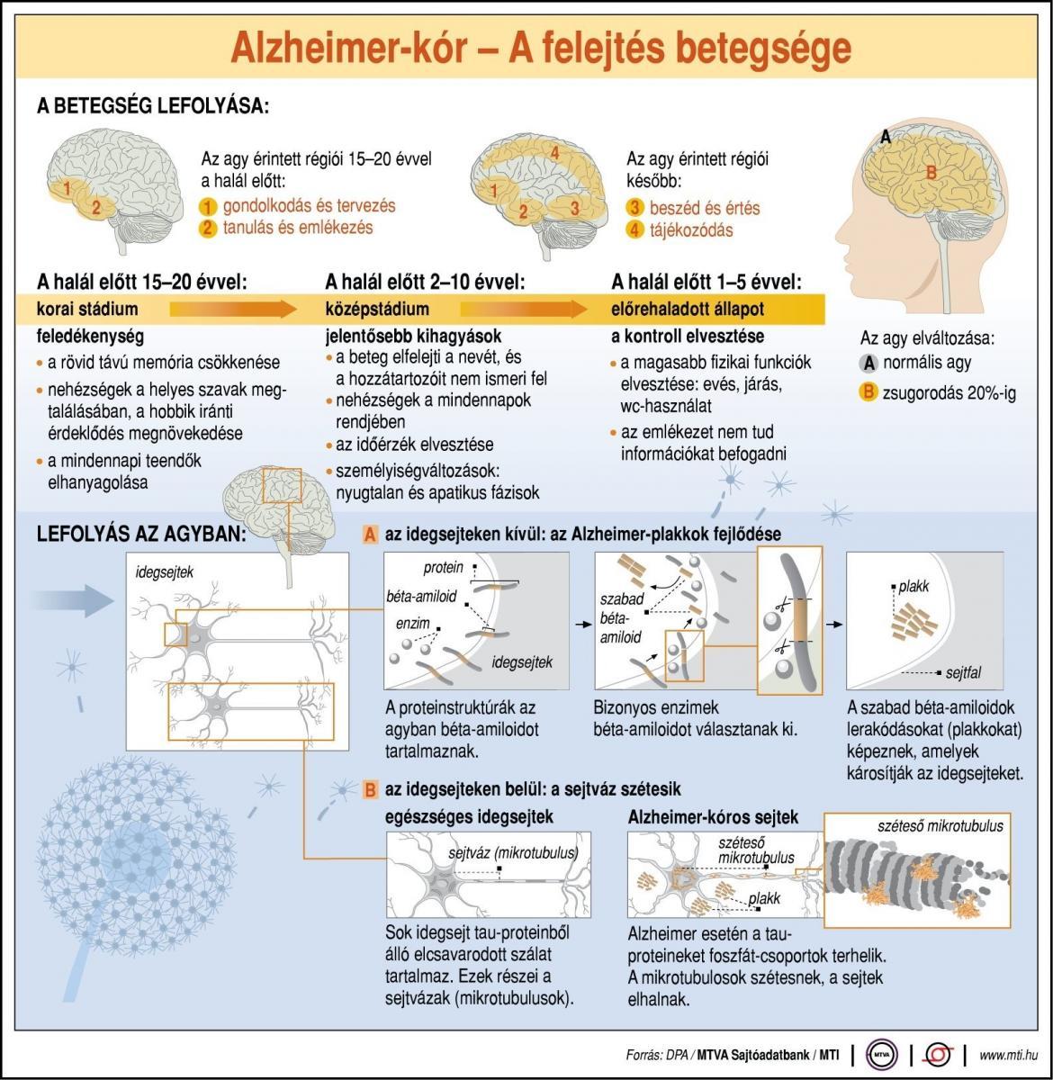 fogyás a demencia korai jele