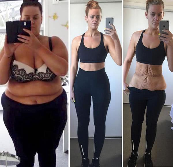 1 hét alatt elveszíti a has súlyát