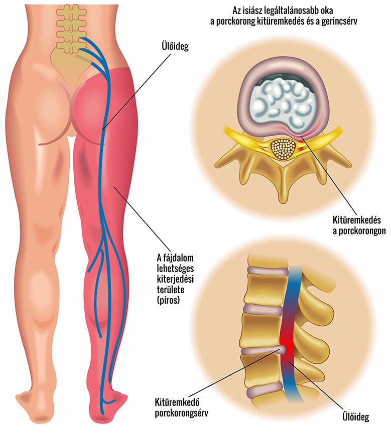 a zsírégetőknek mellékhatásuk van lefogyhat a vulva