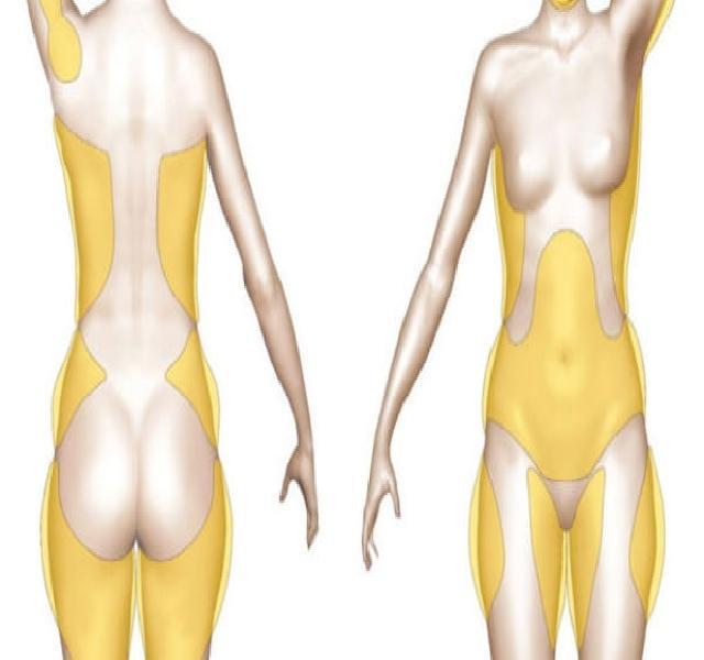 test karcsú baniyan fogyni 30 kg